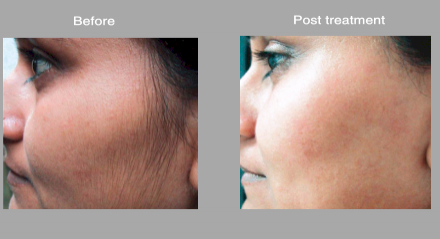 Tremendous High Speed Laser Hair Removal Photos In Tacoma Hairstyle Inspiration Daily Dogsangcom