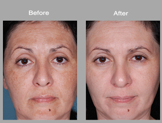 Tretinoin .1 cream before and after - Colchicine